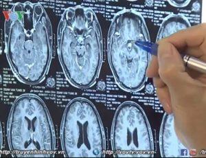 Hình ảnh chụp CT xạ trị u tuyến yên